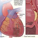 Ursachen eines Herzinfarkts